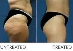 piernas con celulitis y tratada con ageloc