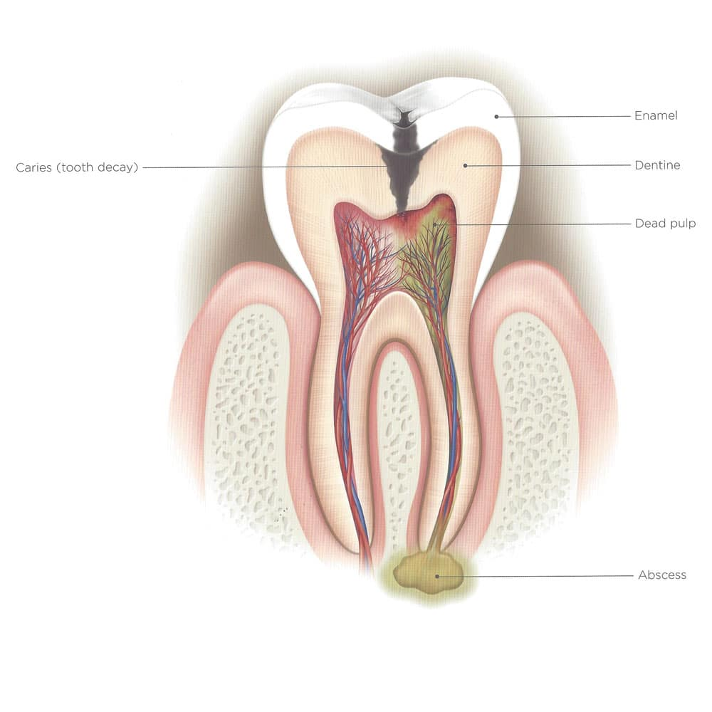 hight resolution of diseased tooth