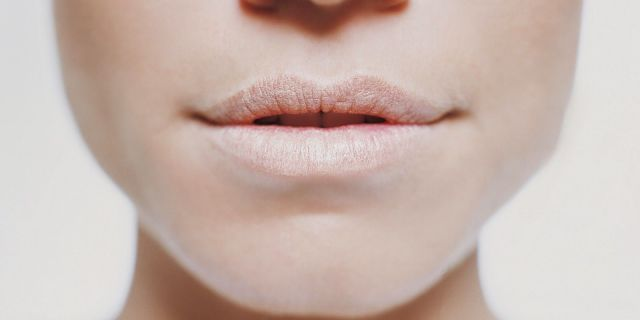 como evitar los labios agrietados