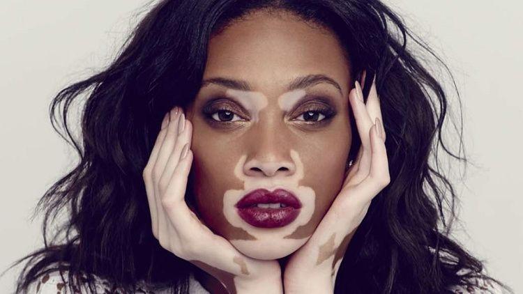 manchas en la piel vitiligo
