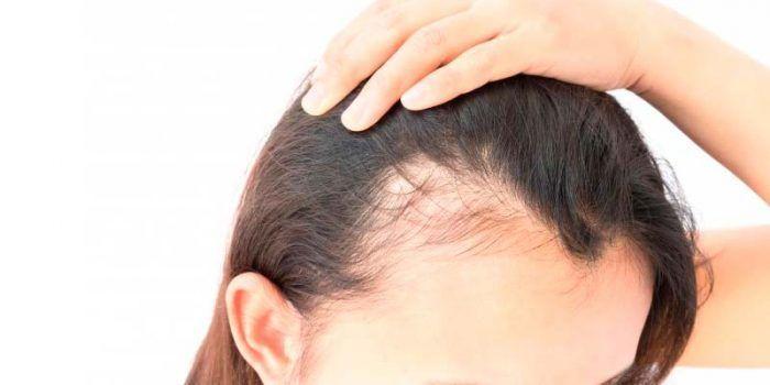 alopecia femenina causas
