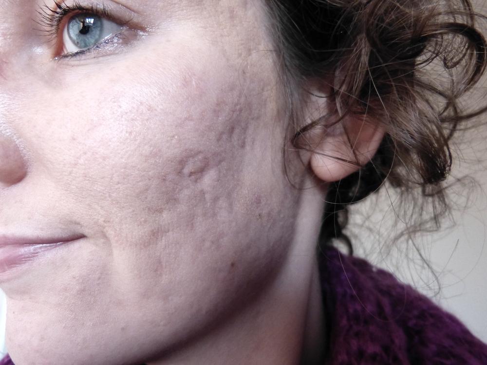 Voor en na: Ernstige acne veroorzaakte de meest verdrietige periode van mijn leven