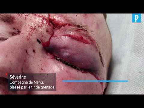 720p – VIDEO – Grenade dans l'œil d'un Gilet jaune  «Manu a perdu beaucoup de sang» – Le Parisien