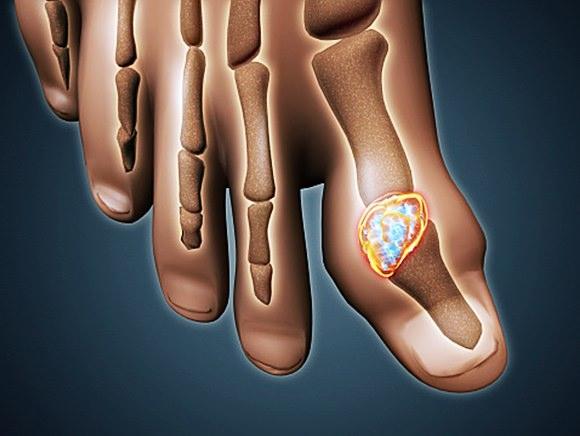 痛風で足の指が壊死・壊疽してしまう可能性も