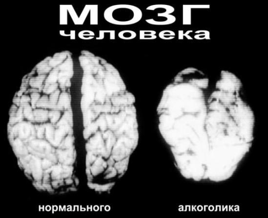 Влияние-алкоголя-на-здоровье-человека-5