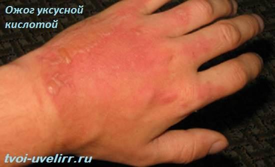 Уксусная-кислота-Свойства-и-применение-уксусной-кислоты-8