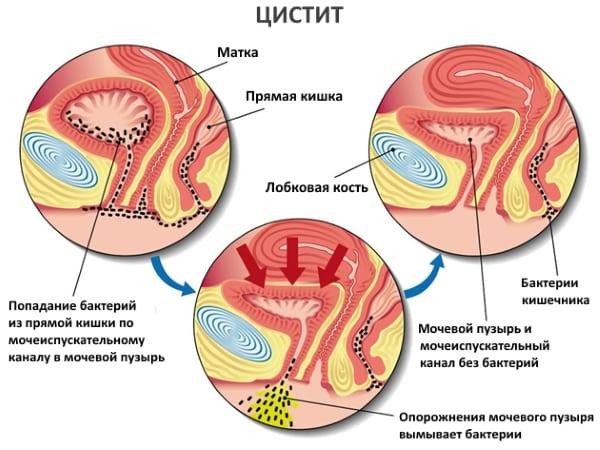 Цистит это: причины, симптомы и лечение воспаления