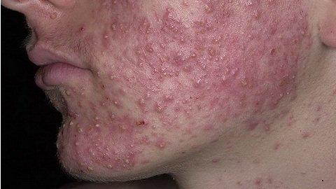 Себорейный дерматит на лице, фото начальная стадия