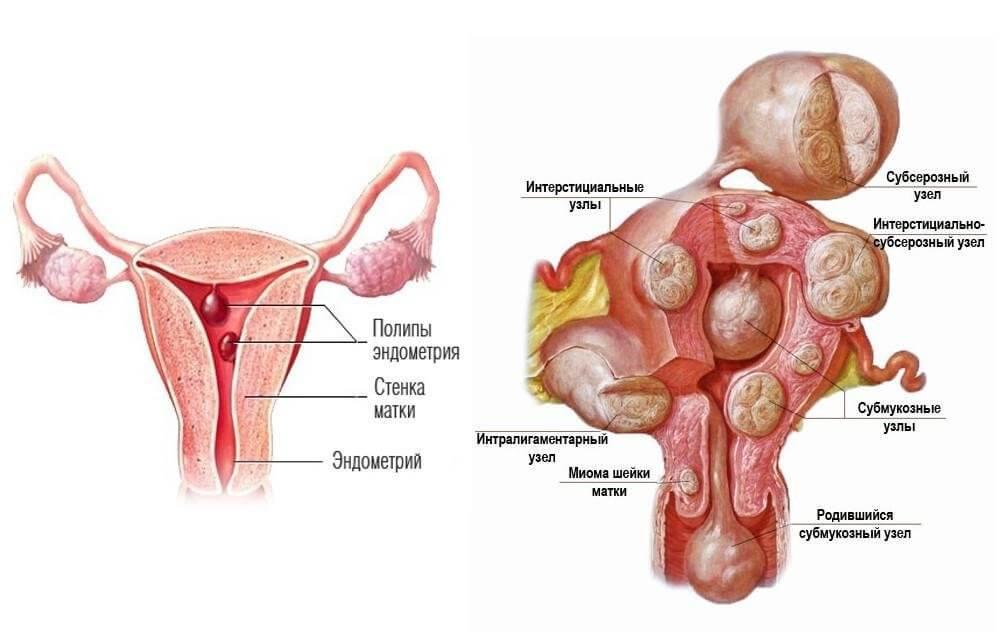 Полип при беременности и секс