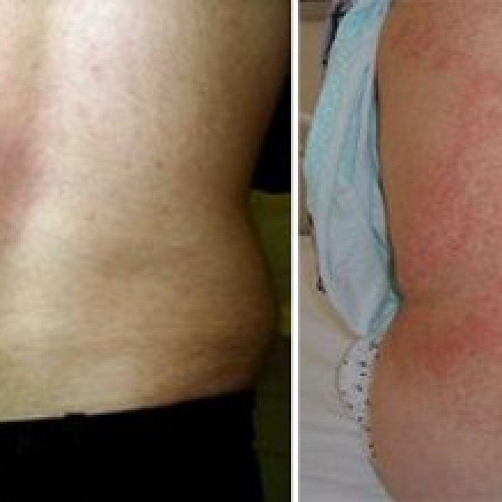 Бруцеллез: симптомы, лечение, профилактика