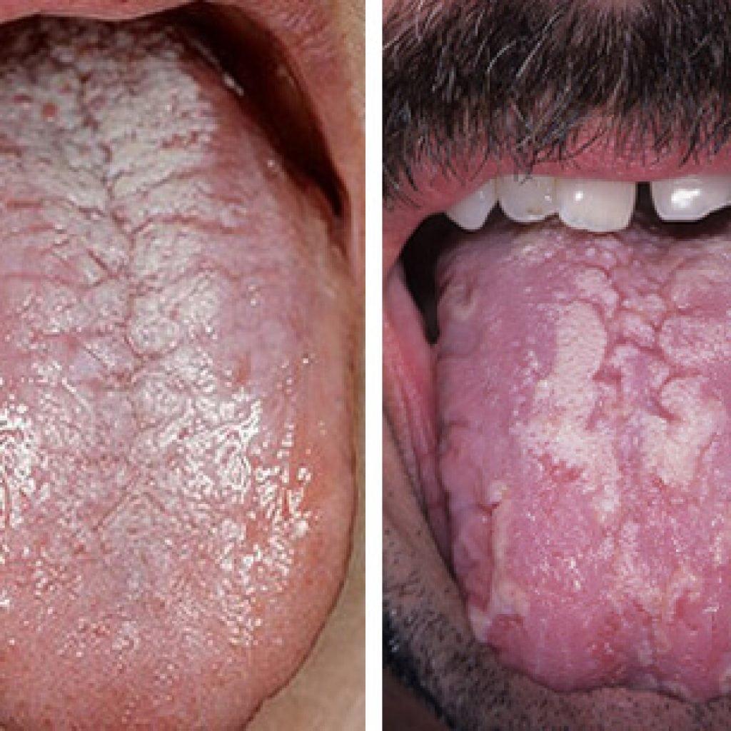 Лечение молочницы во рту у детей лекарственными препаратами и народными способами