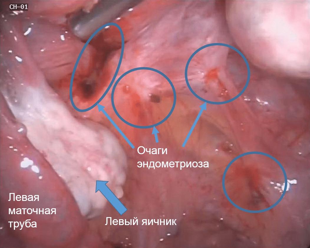 Гинекология эндометриоз фото