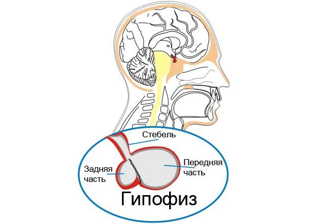 Микроаденома гипофиза: причины, симптомы и лечение