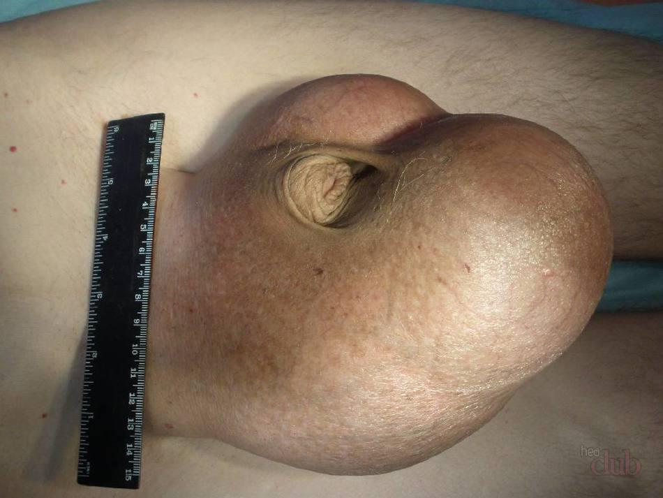Воспаление придатка яичка у мужчин — симптомы и лечение