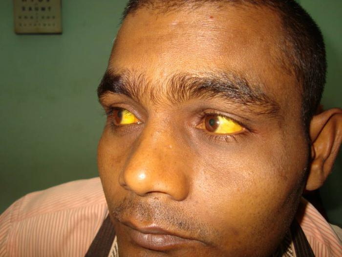 Желтуха: причины возникновения, виды, симптомы, лечение и профилактика