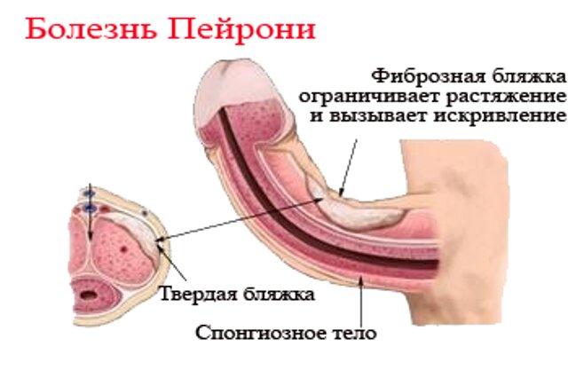 Какие бывают болезни полового члена