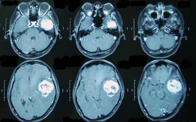 Кистозно глиозные изменения головного мозга