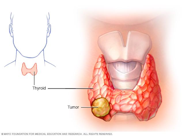 Папиллярный рак щитовидной железы симптомы и лечение