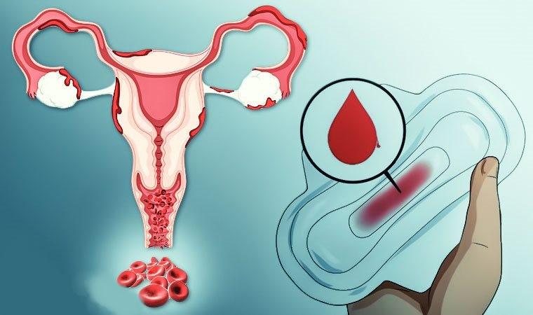 Маточное кровотечение - причины и лечение