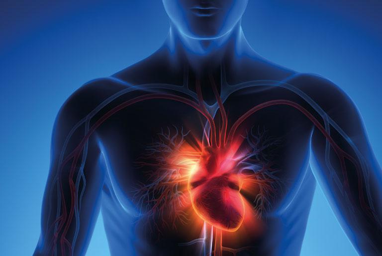 Инфаркт миокарда стабильно тяжелый