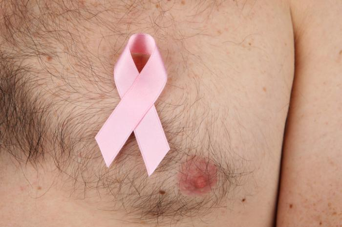 Male breast cancer: Protein discovery could yield new treatments