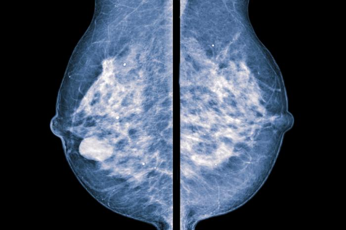 Mammography vs. thermography: Comparing the benefits