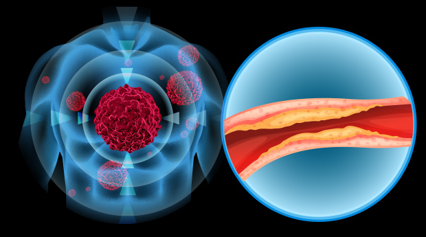 The Truth About Cholesterol Levels & Cancer Most MDs Don't Know