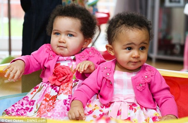 do identical twins have the same DNA? monozygotic twins looks different