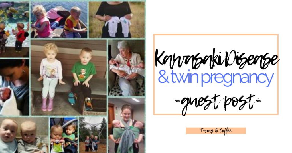 twin pregnancy with kawasaki disease