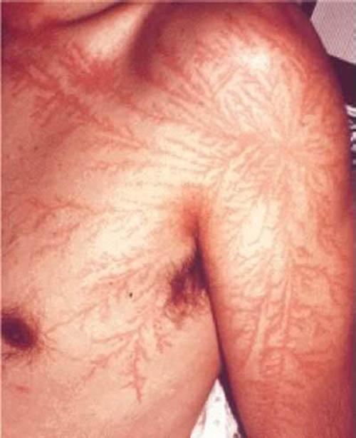 People Struck By Lightning Scars