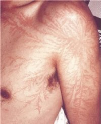 People Struck By Lightning Scars