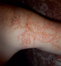 Lichtenberg Figures: The Fractal Patterns of Lightning