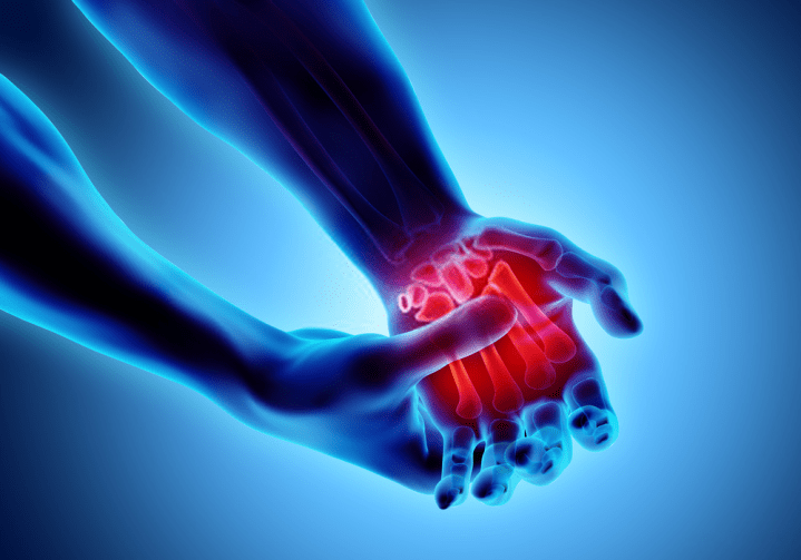 What Are The Causes Of Arthritis And How Can It Be Cured Naturally