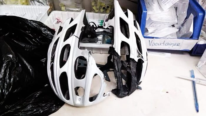No Doubt This Helmet Saved A Friend From Serious Head Injury Or Death