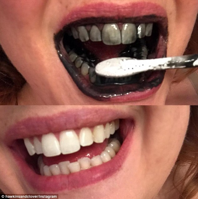 I Tried That Black Charcoal Tooth Whitener So You Don T Have To