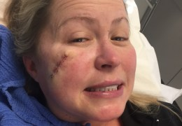 UPDATE: Nik's First (and Hopefully Her Last) Skin Cancer Surgery