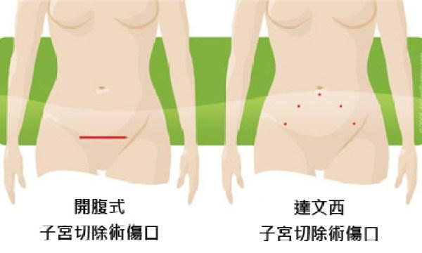 hysterectomy-incision-comparison