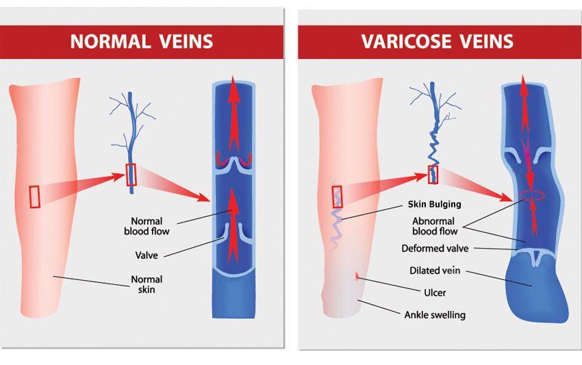Chronic Venous Insufficiency Treatment & Diagnosis | Tx Vein