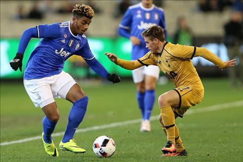 Pogba moi Lemina dang lang phi thoi gian tai Juventus hinh anh 3