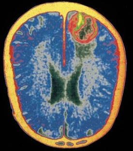 Brain with encephalitis-275x