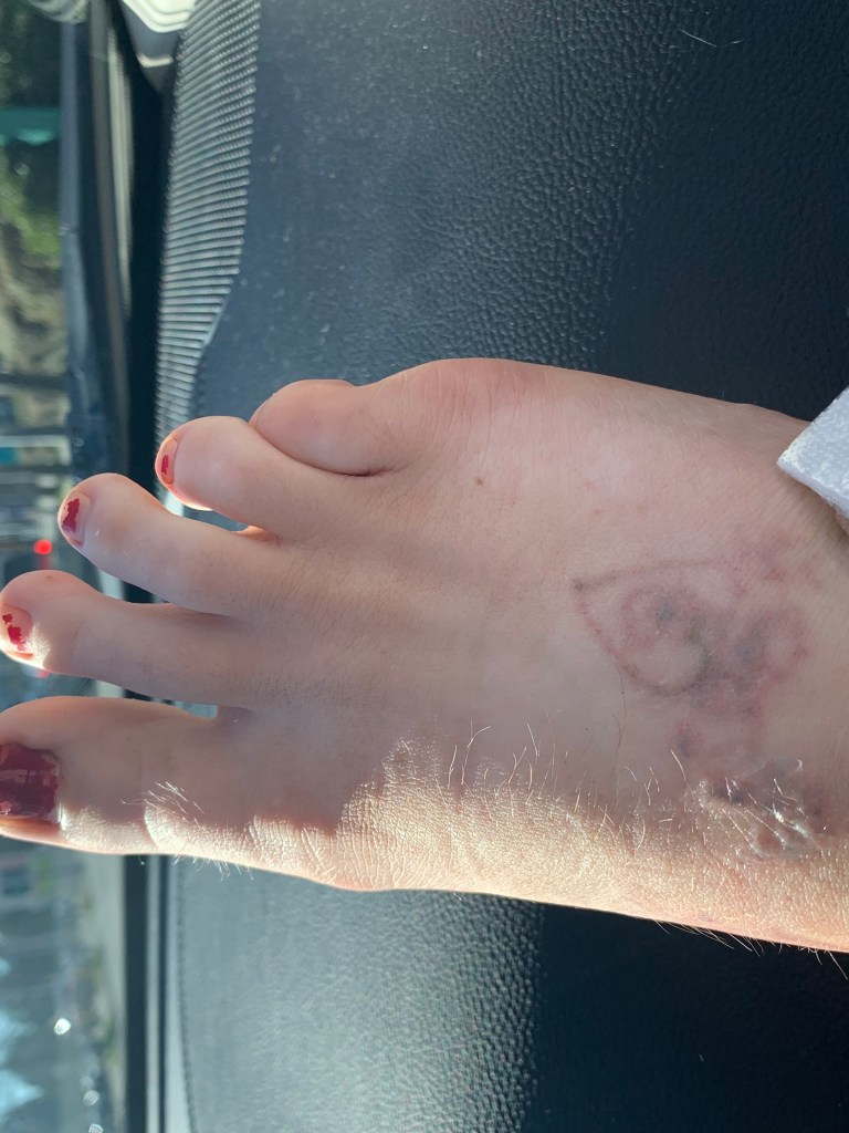 Removing a tattoo on your foot