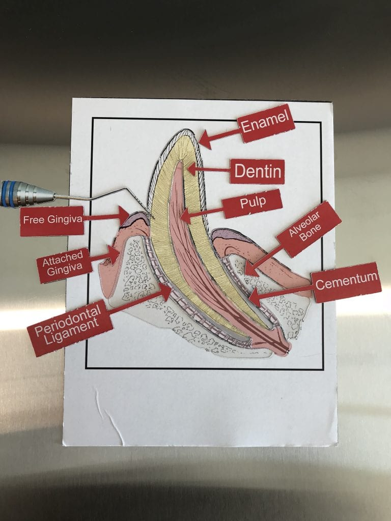 medium resolution of in this activity students would identify and label the various anatomical structures of a tooth which would help them with correctly putting the puzzle