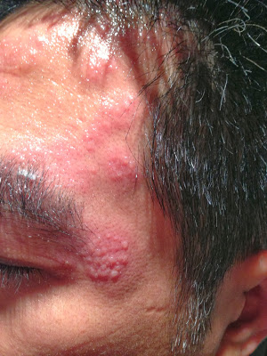 帶狀皰疹是HIV感染者常見的皮膚病 | 性病防治 | 性愛之間 | 元氣網