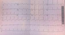 Post cardioversion