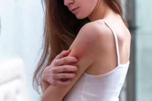 woman scratching red swollen arm