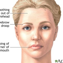 Diagram For Eye Surgery Cartoon Muscles Of The Trunk Bell Palsy | Uf Health, University Florida Health
