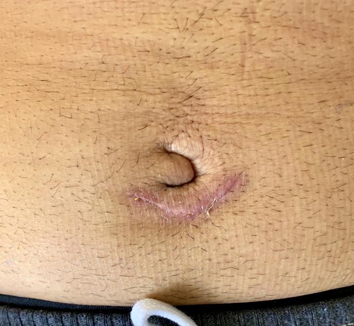 No Mesh Umbilical Hernia Repair in FL | Belly Button Hernia