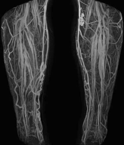 Varice ale uterului - Profilaxie