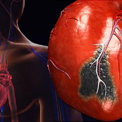 Коллапс сердечное заболевание ⋆ Лечение Сердца