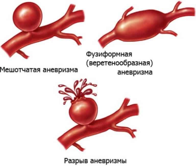 Лопаются капилляры в голове. Какие бывают симптомы и последствия, если лопнул сосуд в голове